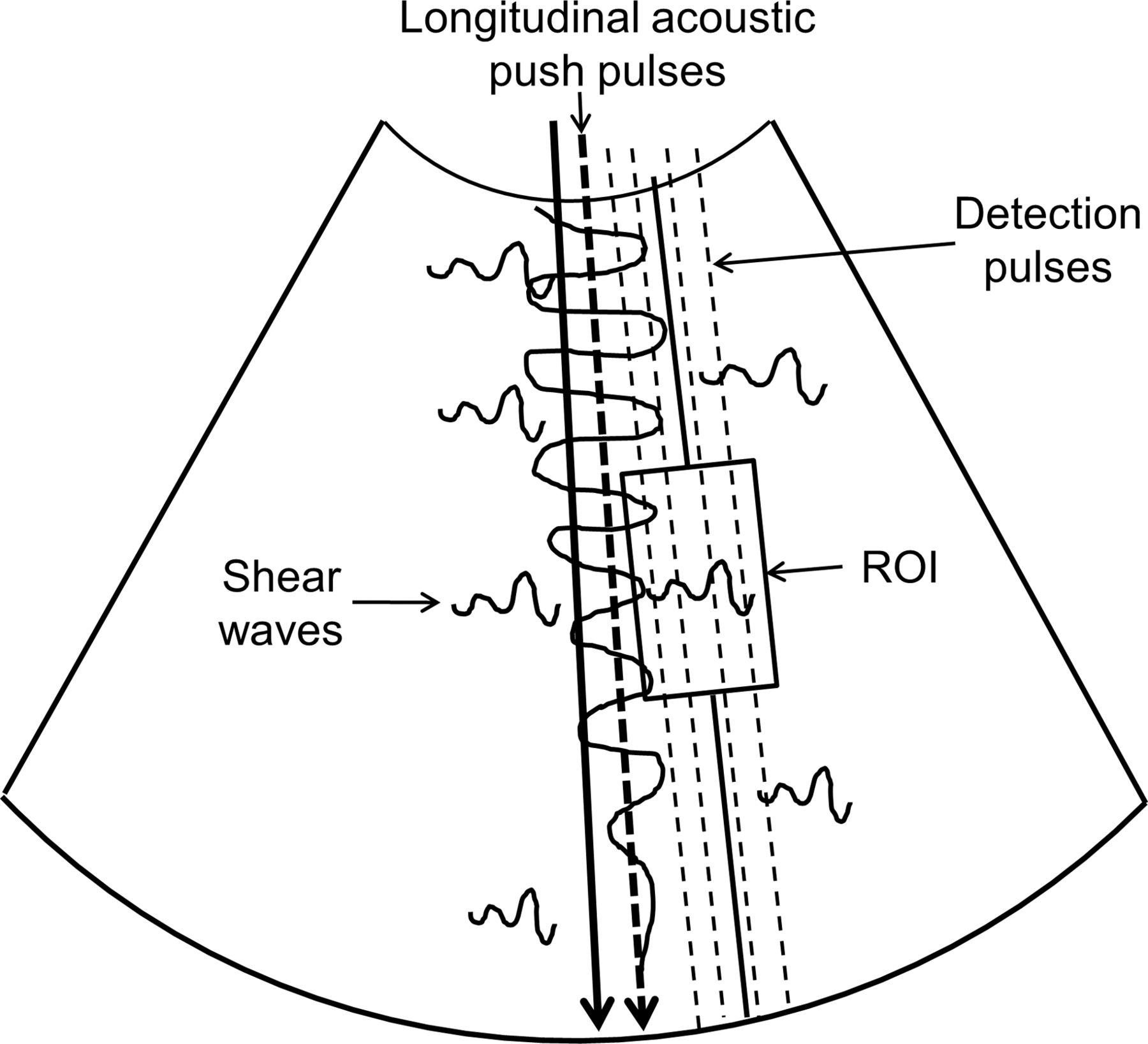 Virtual touch quantification (VTq) elastography for non