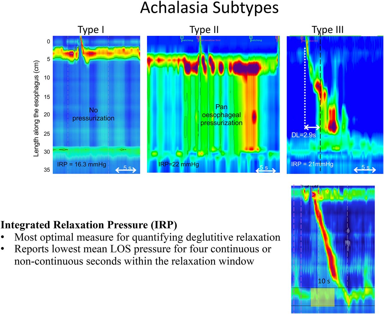 poem and the management of achalasia